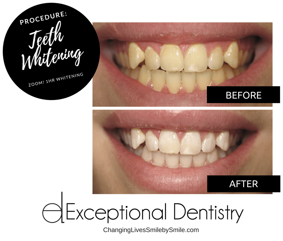 Teeth Whitening in Palmdale, CA