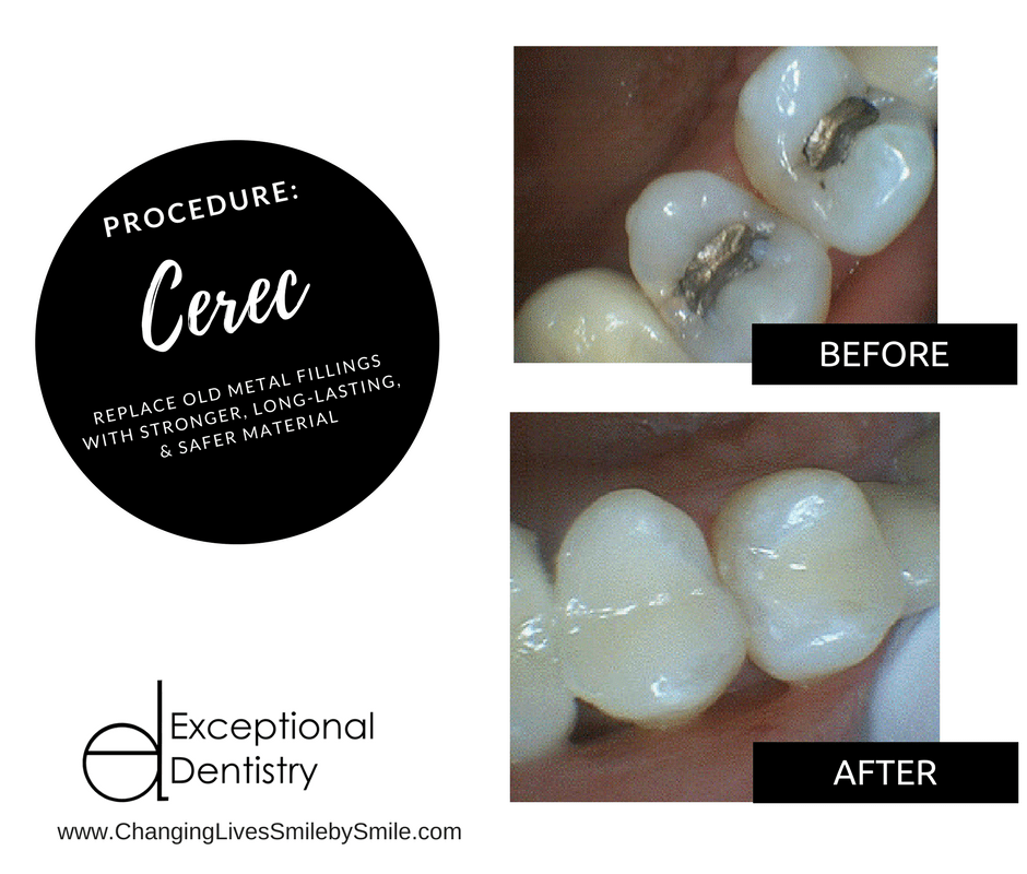 Cerec Crowns and Restorations