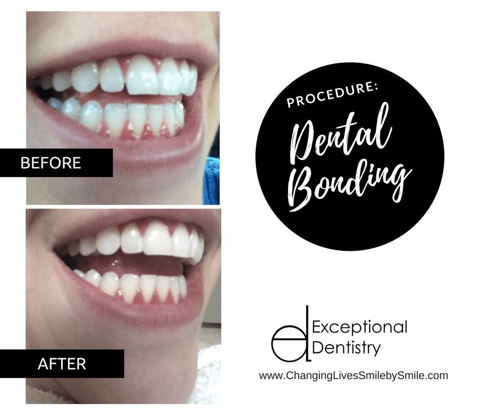 Dental Bonding B&A in Palmdale, CA