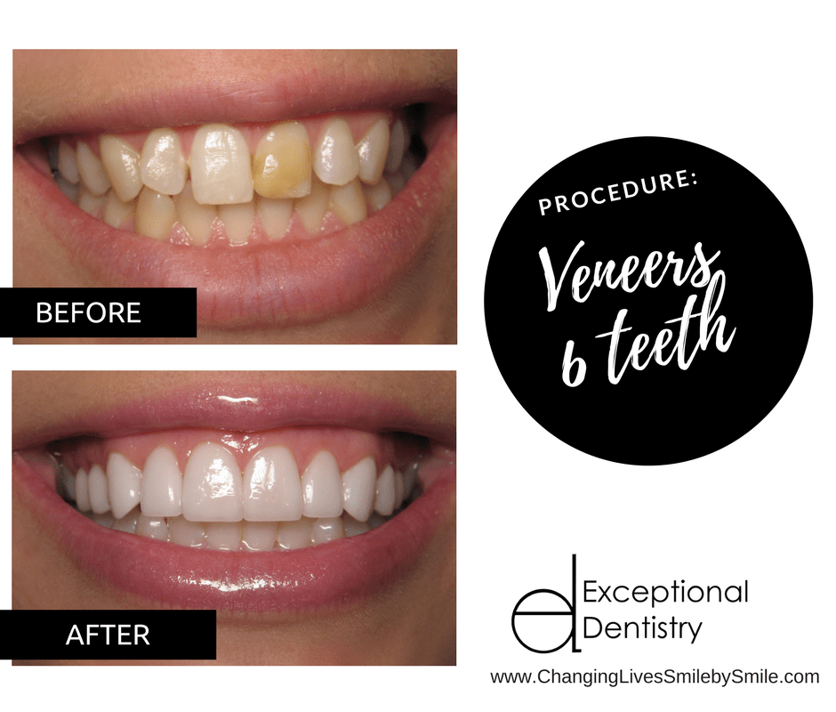 Veneers Upper Teeth | Exceptional Dentistry