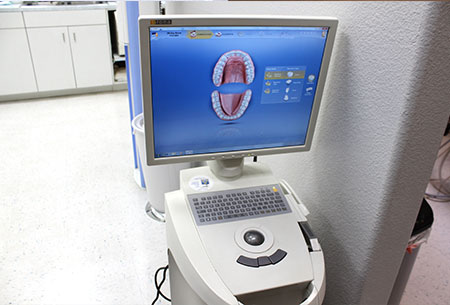 exceptional dentistry cerec machine