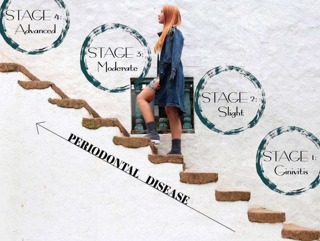 Periodontal Disease Stage chart