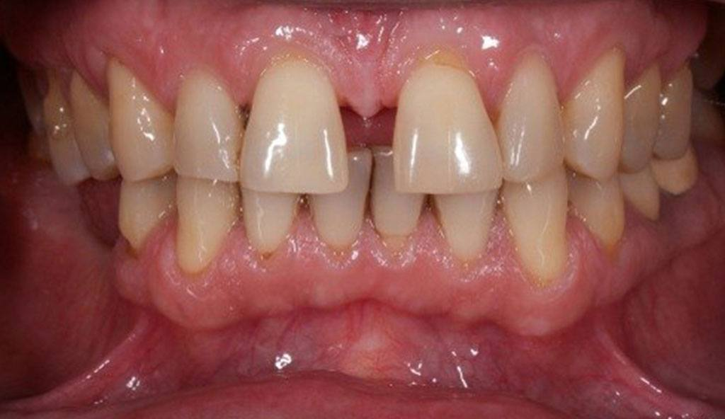 What Happens When Gum Disease Is Allowed to Progress ...