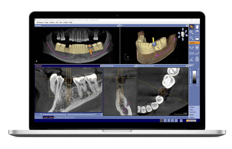 CBCT Exceptional Dentistry Palmdale, CA