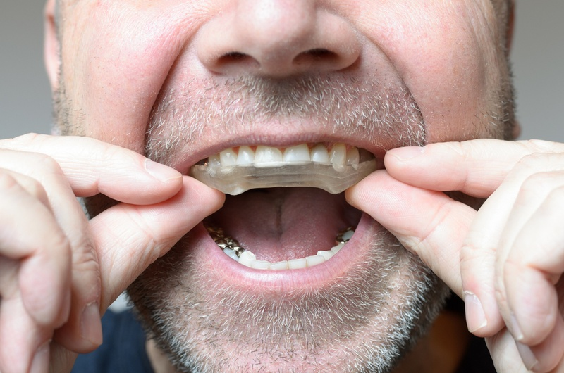 What Is Bruxism How Does It Destroy Your Health Dentist In